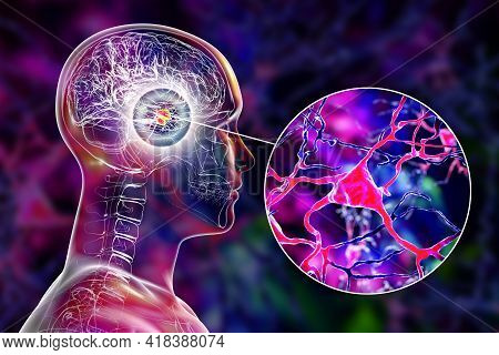 Amygdala In The Brain, And Closeup View Of Amygdala Neurons, 3d Illustration. Two Almond-shaped Clus