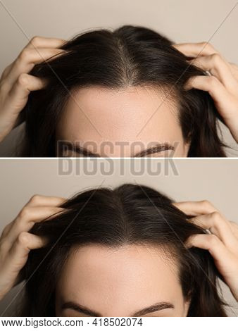 Woman Suffering From Baldness On Beige Background, Closeup. Collage With Photos Before And After Tre