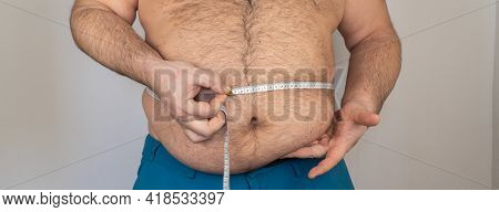 Fat Man Measures The Size Of The Abdomen With A Centimeter Measuring Tape. Person Is Overweight, He