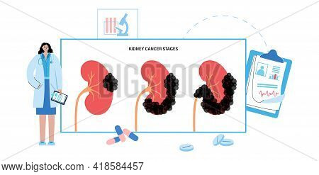 Kidney Cancer Stages, Pain And Inflammation. Oncology Disease In Urinary System Concept. Benign Or M