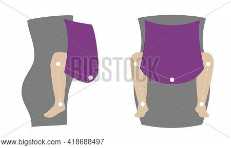 Schematic Physiological Position Of The Child In The Carrier. M-position For The Prevention Of Hip D