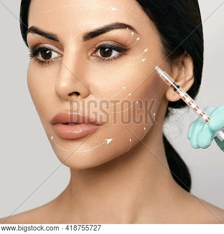 Facial Mesotherapy. Face With Lift Arrows. Beautician Doing Anti-aging Injection For Tightening Skin