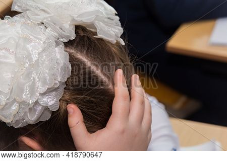 The Girls Hand Supporting Her Head And White Fluffy Bows On Her Head. The Girl Sits At Her Desk At S