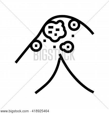 Atopic Dermatitis Line Icon Vector. Atopic Dermatitis Sign. Isolated Contour Symbol Black Illustrati