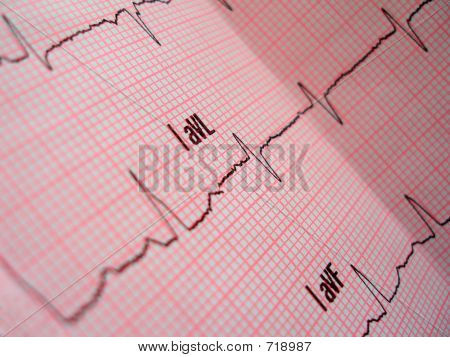 Heart Analysis Scheme