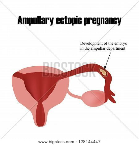 Development of the embryo in the ampullar department. Ectopic pregnancy. Infographics. Vector illustration on isolated background.