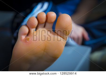 Calluses On Foot
