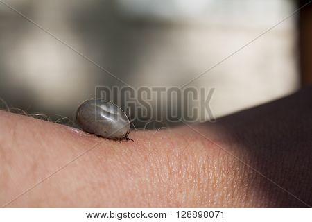 fed tick on human's hand closeup shot