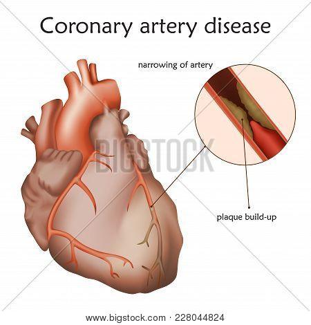 Coronary Artery Disease. Blocked Artery, Damaged Heart Muscle. Anatomy Illustration. Colorful Image,