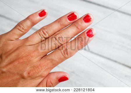 The Hand Demanding Manicure, Nails With A Bare Varnish