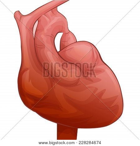 Heart Disease With Coartation Of Aorta. Myocardial Infarction Or Heart Attack Concept. Medical Illus