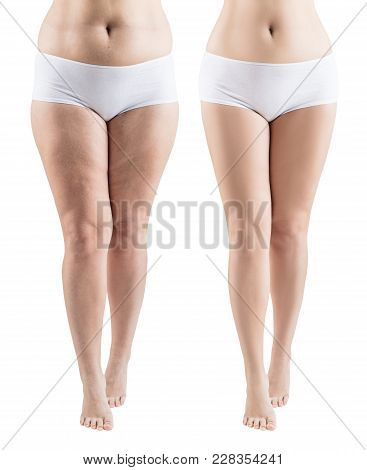 Woman Legs Before And After Slimming And Treatment Skin Condition. Isolated On White.