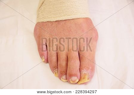 Bad Foot Skin Bacterial Fungal Infection With Damaged Nail Close Up.  Hallux Rigidus Tends To Affect