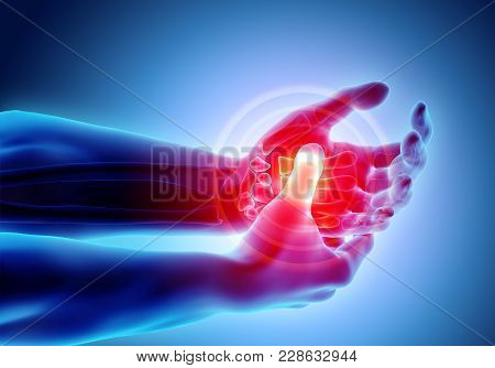 3d Illustration Of Palm Painful - Skeleton X-ray, Medical Concept.