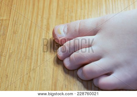Effects Of Enterovirus On The Body In The Form Of Damage To The Thumb. His Fingernails Became Uneven
