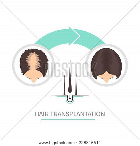 Hair Transplantation Surgery 2 Steps Infographics. Patient Before And After The Procedure. Female Ha