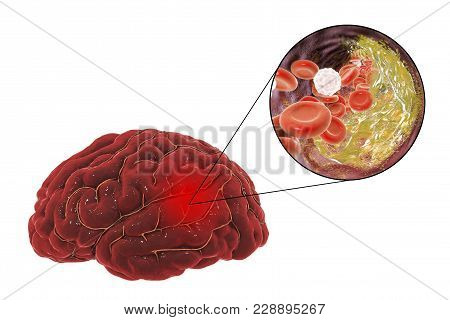 Ischemic Brain Stroke Treatment And Prevention Concept, 3d Illustration Showing Human Brain And Clos