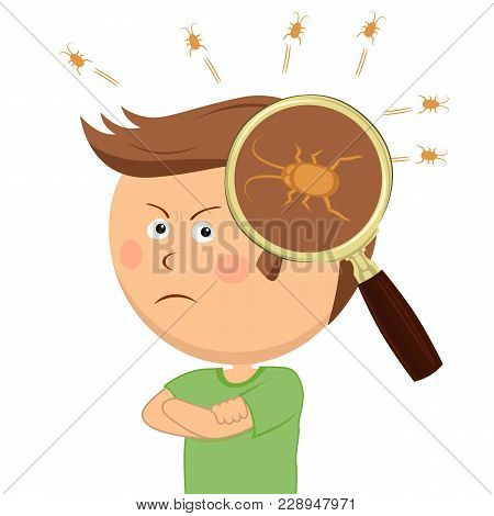 Magnifying Glass Shows Lice In The Head Of Angry Little Boy On White
