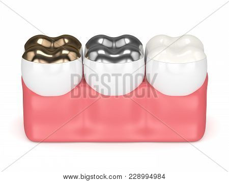 3d Render Of Teeth With Gold, Amalgam And Composite Onlay Dental Filling Over White Background