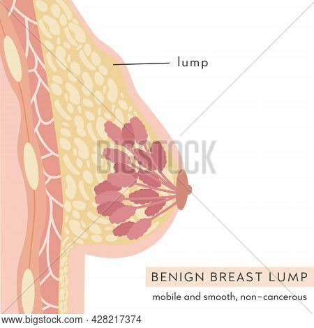 Medical Infographic Cross Section Of Female Breast With Benign Lump. Anatomy Of Woman Chest. Mammary