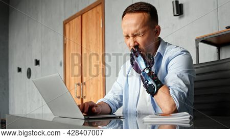 Disabled programmer with bio hand high tech prothesis solves problem typing on laptop and yawns at home workplace against brown door