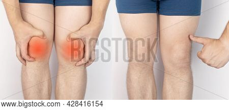 Before And After. On The Left, A Man Is Holding Onto An Injured Knee, And On The Right, Doctors Have