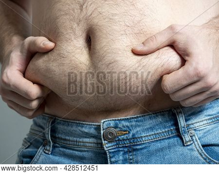 Close-up Of A Man Holding The Fat Folds Of His Fat Belly. The Concept Of Problems With Excess Weight