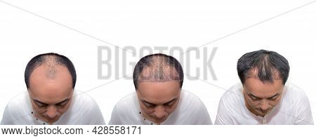 Hair Transplantation Surgery Steps. Patient Before And After The Procedure. Male Hair Loss Treatment