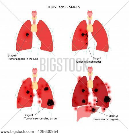 Lung Cancer Stages. Respiratory System Disease. Tumor, Swelling, Inflammation And Metastasis In The