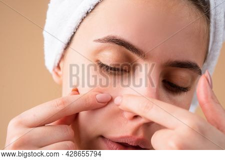 Girl Squeezing Pimples On Face. Acne Blemish Spots Skin On Young Woman. Spot Scar Acne, Freckles, An