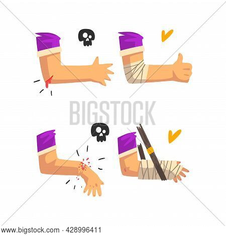 First Aid For Wounded Bloody Elbow And Arm Fracture Vector Set