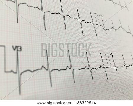 Ecg/Ekg graph chest lead showing normal healthy heart rhythm