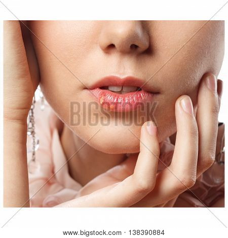 Beautiful lips infected herpes virus over white background