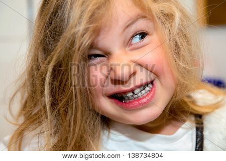 Little Funny Girl With Retainer
