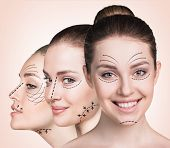 Anti aging treatment and plastic surgery concept. Beautiful faces of young woman with arrows over biege background poster