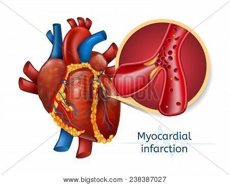 Myocardial Infarction. 3d Realostic Illustration Of Human Heart With Blocked Coronary Artery. Vector