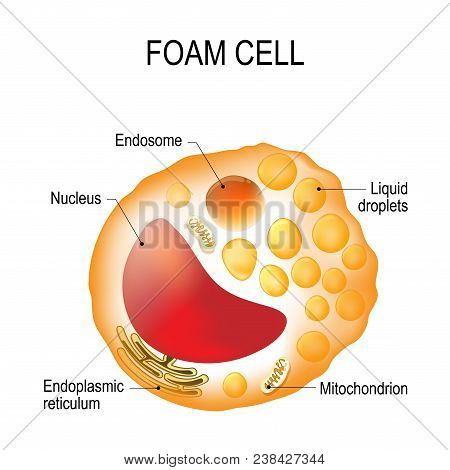 Structure of the foam cell. Foam cell is a swollen macrophage filled with lipid inclusions. This cell serve as the hallmark of early stage atherosclerotic lesion formation. Cholesterol-loaded cells (foam cells) make plaque unstable, leading to heart attac poster