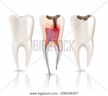 Enamel Caries Infection And Health Tooth 3d Realistic Pulpitis. 3d Realistic Vector Illustration Of