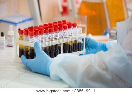 Blood Test.blood In Test Tubes.microbiological Examination Of Blood