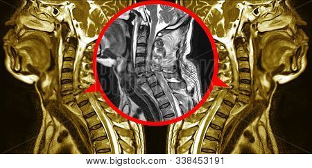 Mri Of Cervical Spine  History: A 57-year-old Male, Presented With History Of Vehicle Acciden Total
