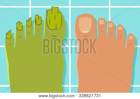 Ugly Toes With A Fungus. Vector Illustration Of A Healthy And Diseased Foot Isolated On Background.