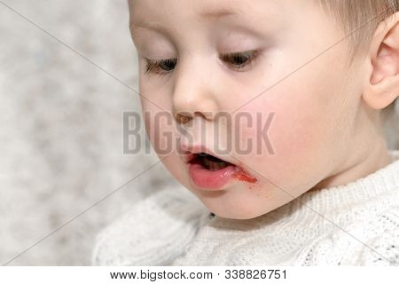 Acute Herpetic Stomatitis In Children Is An Infectious Viral Disease Caused By Primary Contact With