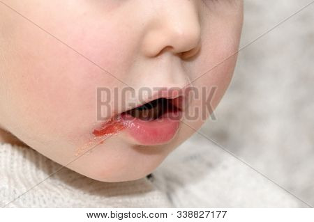 Herpes On Upper Lip Of A Little Girl. Wound On The Face Of A Schoolboy. Inflammation Of The Lip. Chi