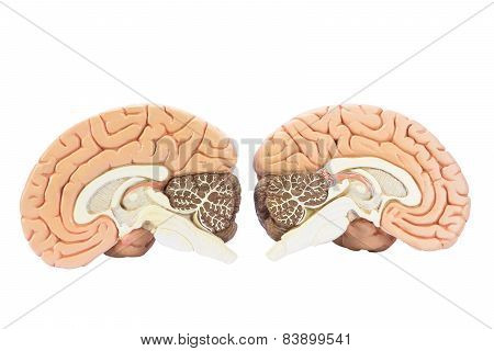 Two artificial human hemispheres