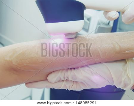 Laser Hair Arm Removal Epilation. Treatment In Cosmetic Salon.