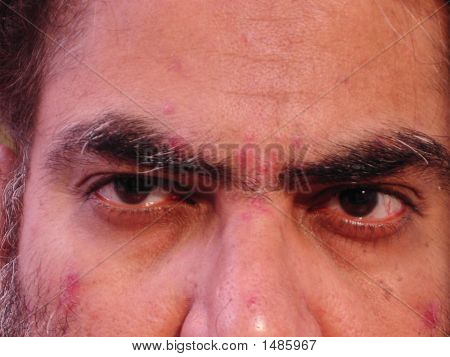 Close Up Of A Man With Skin Malady - 4