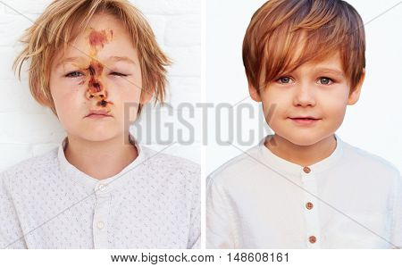 A Comparison Of The Same Boy, Healthy And With The Injury Caused By A Fall From A Bicycle