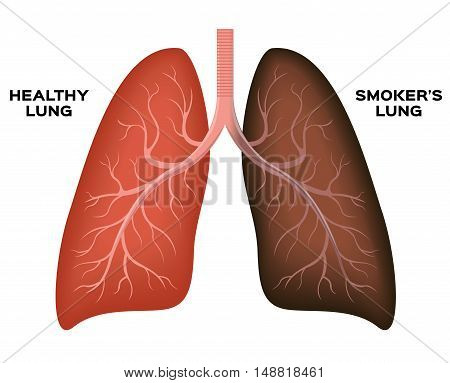 Normal lung , smoker's lung vector on white background