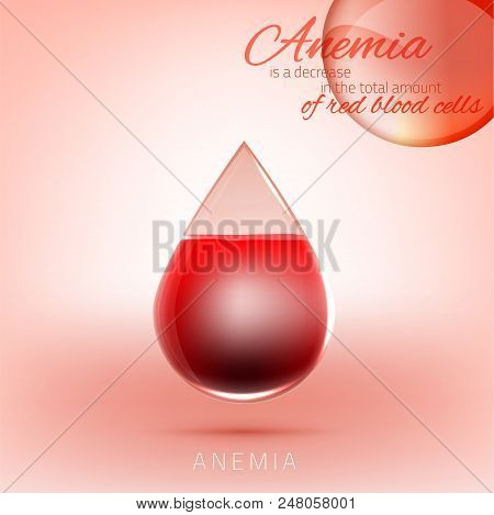 Anemia and Hemophilia concept. Transparent drop of blood with red cells level isolated on light pink background. Haemophilia disease awareness symbol. Vector illustration. poster
