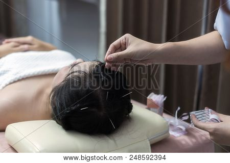 Therapist Giving Acupuncture Treatment Needle On The Head For Hair Transplant  Treatment At The Heal